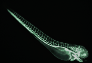 good example of abnormal vasculature gfp